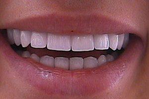 kakie-koronki-podhodyat-dlya-perednih-zubov