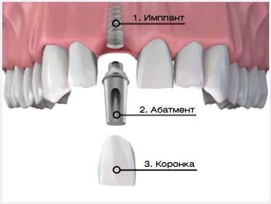 protezirovanie_zubov_na_implantatah