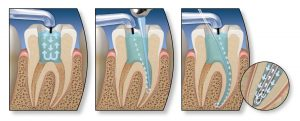 endo-root-canal-steps