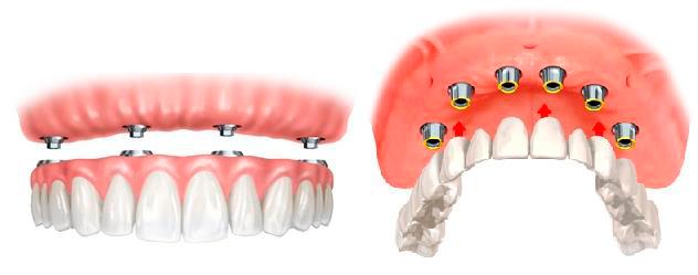 nesemnye zubnye protezy