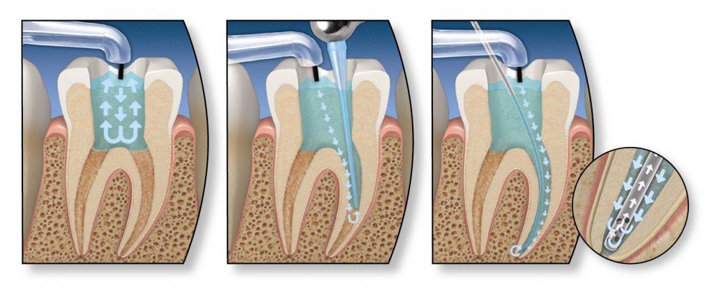 пломбирование зубных корней
